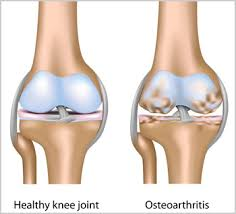 When to start fighting Osteoarthritis….NOW!!